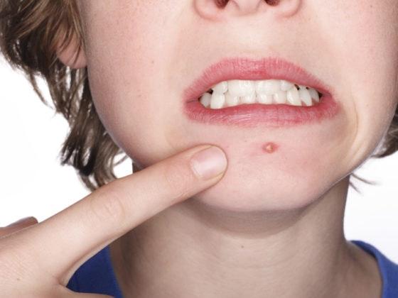 Como acabar con el acné