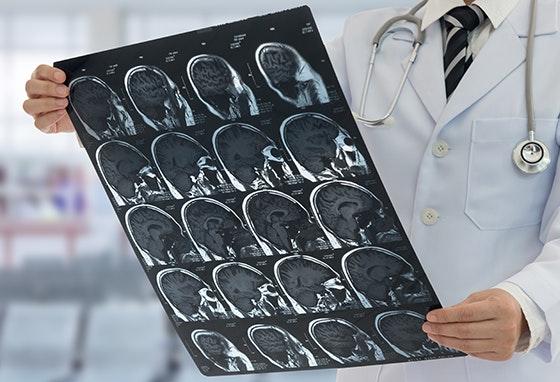 Acidente Vascular Cerebral. Faça um rastreio no nosso Centro.