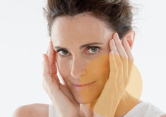 tratamiento carboxiterapia facial